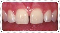 phuket-dentist-serviceimg10