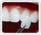 phuket-dentist-serviceimg11