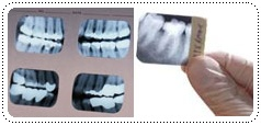 phuket-dentist-serviceimg2