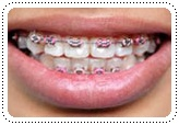 phuket-dentist-serviceimg21