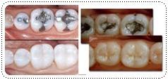 phuket-dentist-serviceimg3