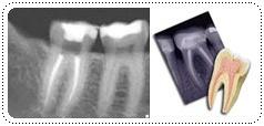 phuket-dentist-serviceimg6