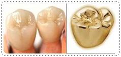 phuket-dentist-serviceimg7