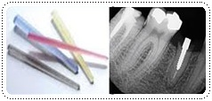 phuket-dentist-serviceimg8
